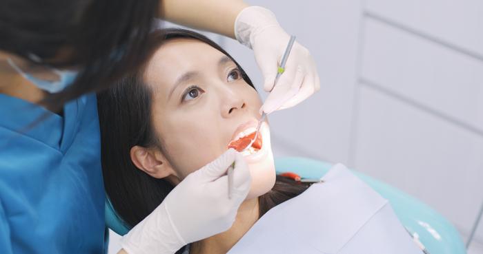 早期の処置が共通ポイント=汚れと虫歯の類似性について